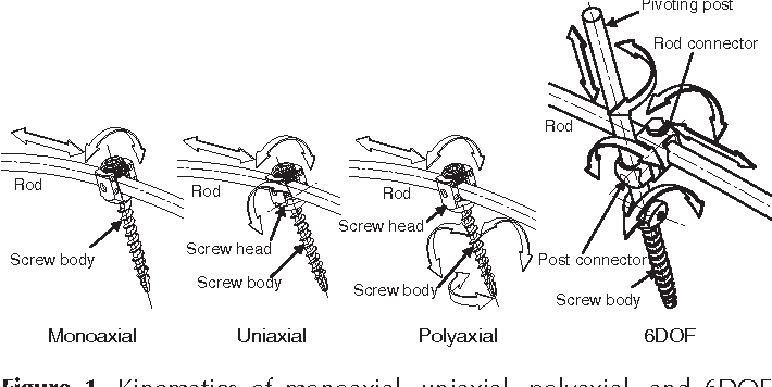 Figure 1 from Biomechanical analysis of 4 types of pedicle