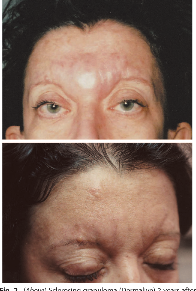 Figure 2 from Foreign body granulomas after all injectable