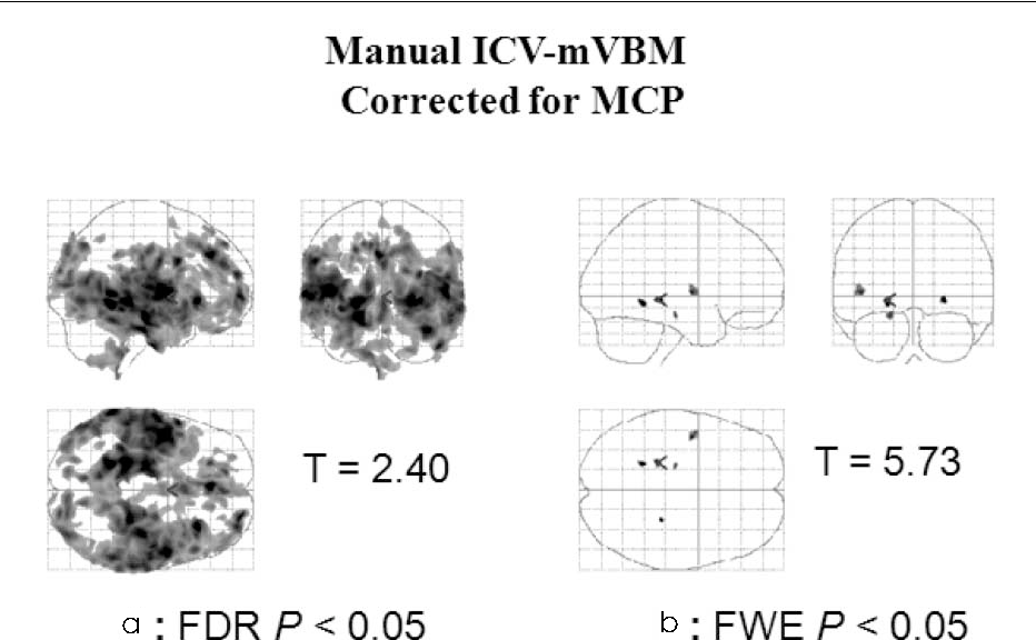 PDF] Effects of Various Intracranial Volume Measurements on ...