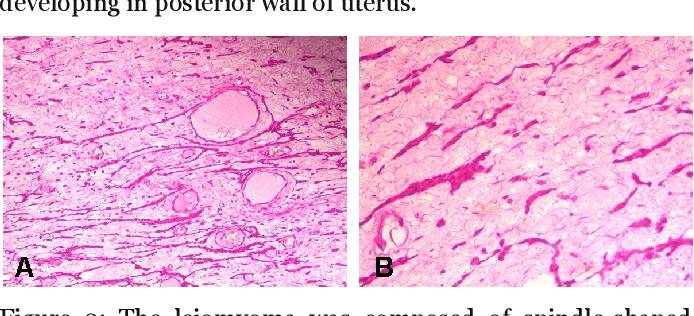 Leiomyom des uterus