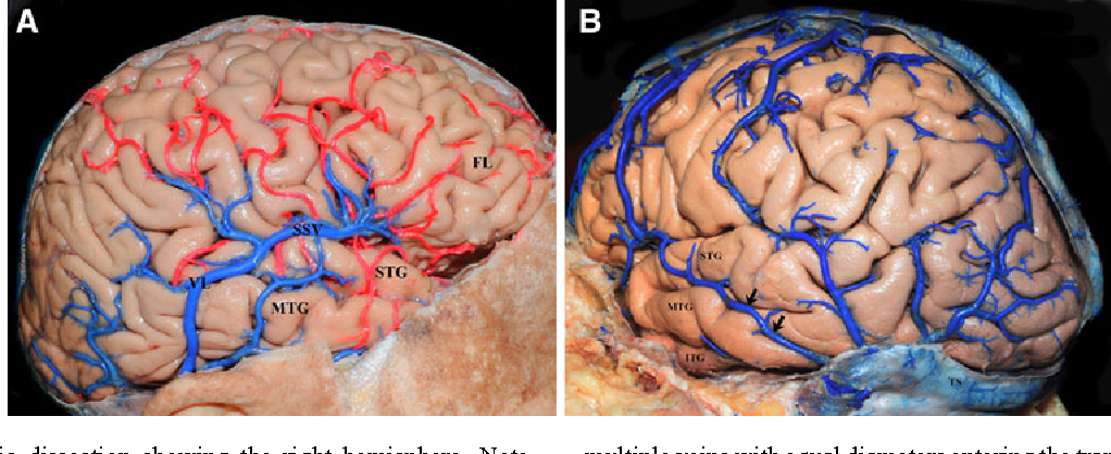 Figure 1 from Microsurgical anatomy of the vein of Labbé