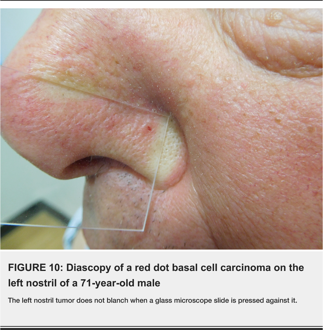 Figure 10 from Red Dot Basal Cell Carcinoma: Report of Cases