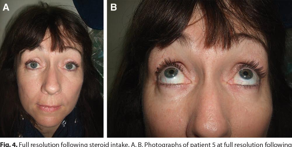 Late-Onset Inflammatory Response to Hyaluronic Acid Dermal