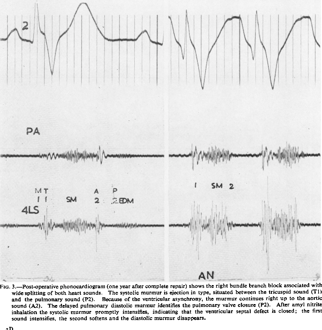 Figure 3 from The surgical treatment of the tetralogy of ... on nephrotic syndrome pathophysiology, retinopathy of prematurity pathophysiology, typhoid fever pathophysiology, chronic obstructive pulmonary disease pathophysiology, cardiac tamponade pathophysiology, mitral valve stenosis pathophysiology, cushing's syndrome pathophysiology, sarcoidosis pathophysiology, bronchiolitis pathophysiology, mitral valve regurgitation pathophysiology, atrial flutter pathophysiology, ankylosing spondylitis pathophysiology, unstable angina pathophysiology, aspiration pneumonia pathophysiology, cardiogenic shock pathophysiology, umbilical hernia pathophysiology, pleural effusion pathophysiology, meningitis pathophysiology, aortic stenosis pathophysiology, alzheimer's disease pathophysiology,