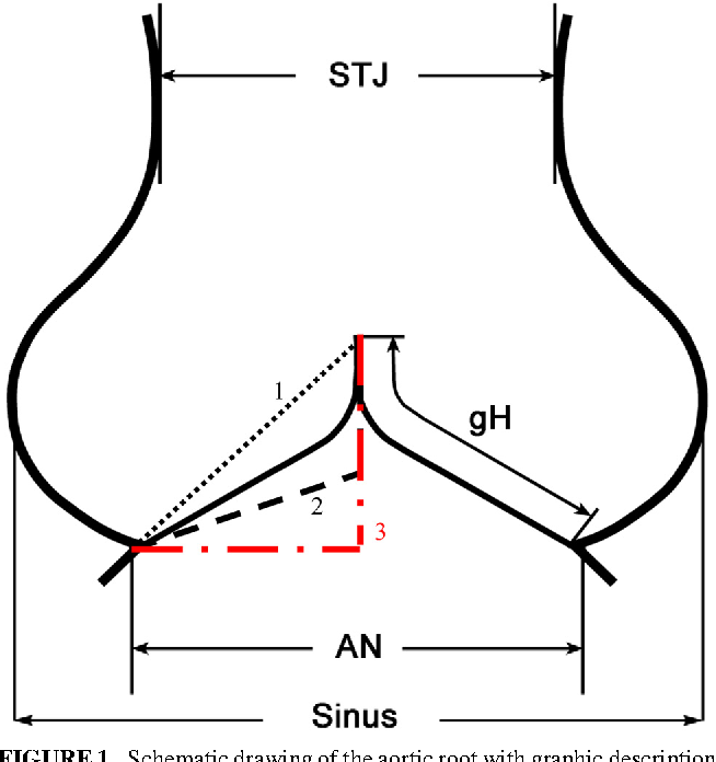 Figure 1 from Cusp height in aortic valves. - Semantic Scholar on