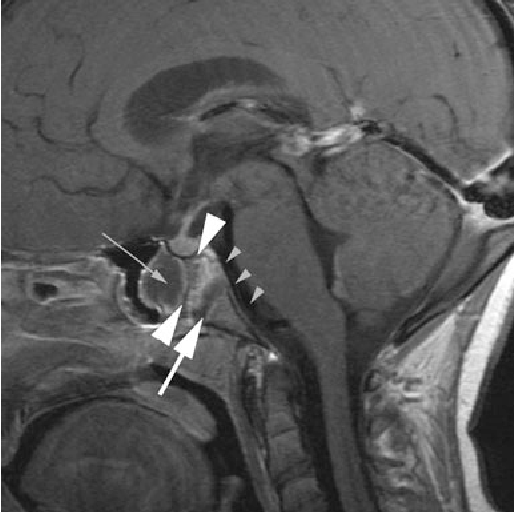 Figure 3 From Bilateral Abducens Paralysis Revealing Bipartite Spheno Occipital Synchondrosis Fracture In A Child Case Based Update Semantic Scholar The closure of this synchondrosis proceeds in an orderly fashion, beginning at the superior border and progressing. figure 3 from bilateral abducens