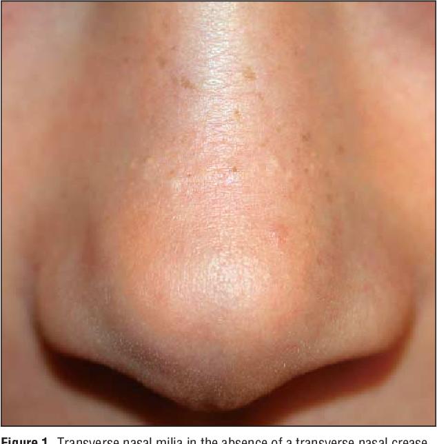 Transverse nasal crease and transverse nasal milia: clinical