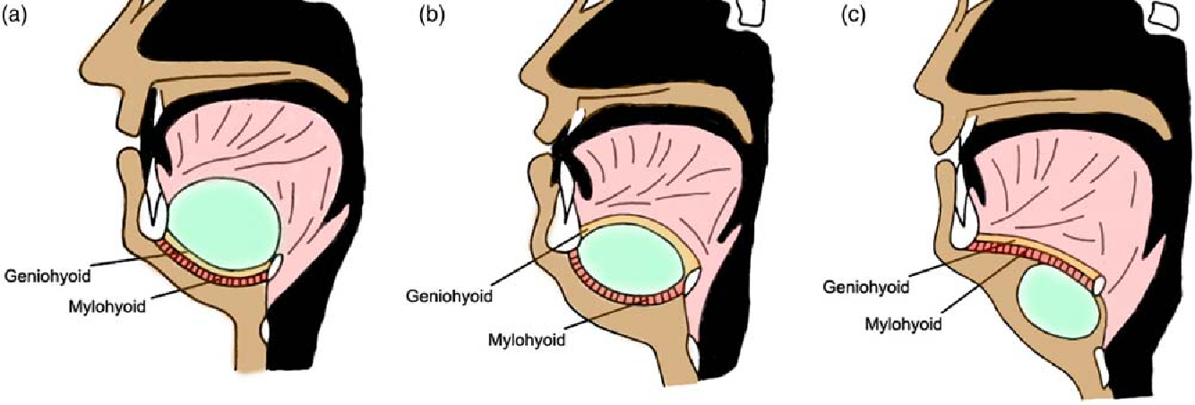 Figure 5 from Case report of complicated epidermoid cyst of