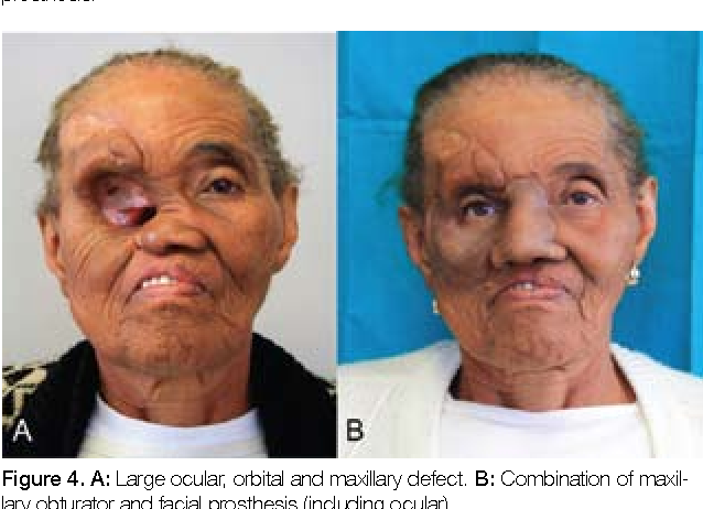 The scope of maxillofacial prosthodontics. | Semantic Scholar