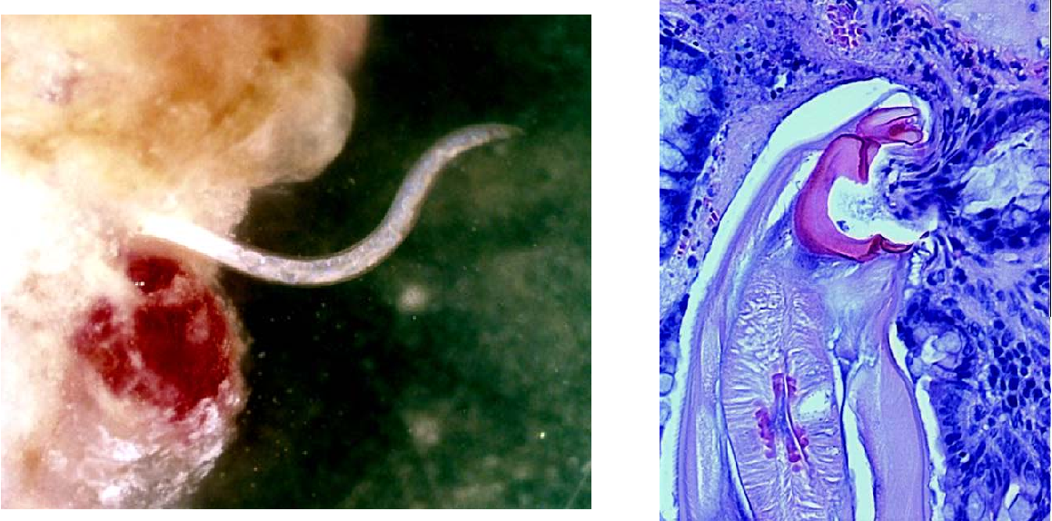 Figure 4 from The Immunoepidemiology of Hookworm Infection