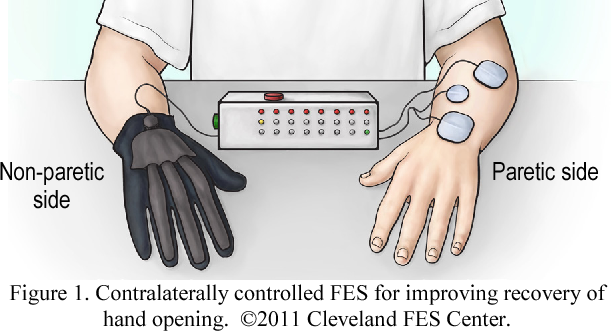 Contralaterally controlled functional electrical stimulation