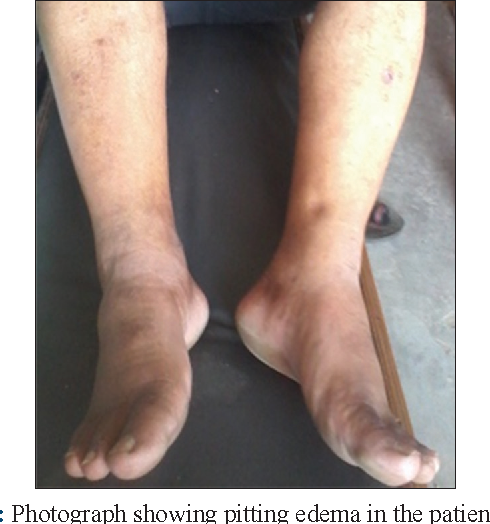 PDF] Depression led pitting edema: A rarest case