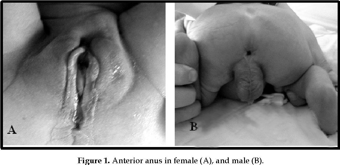 Female anal techniqiu