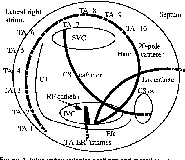 Figure 1 from Acceleration of typical atrial flutter due to