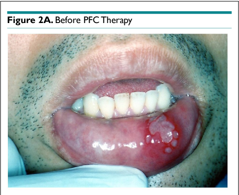 PDF] Case Report Using 4% Fucoidan Cream for Recurrent Oral