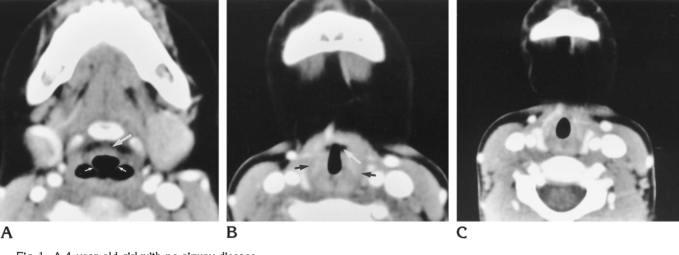 Figure 1 From The Normal Pediatric Larynx On Ct And Mr Semantic
