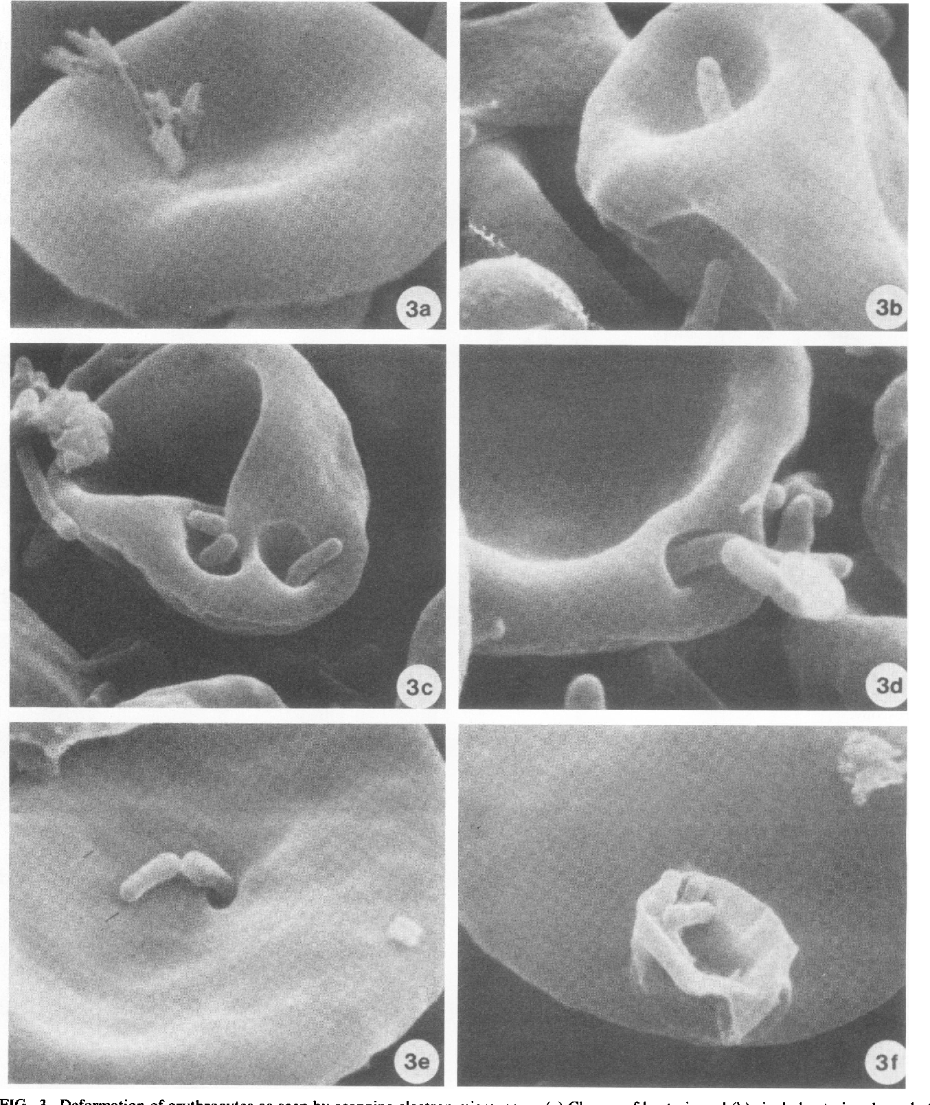 PDF] Entry of Bartonella bacilliformis into erythrocytes