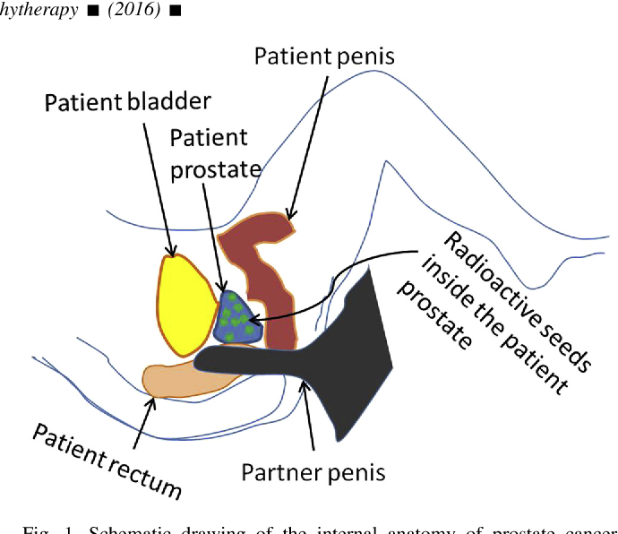Changes to prostate with anal intercourse