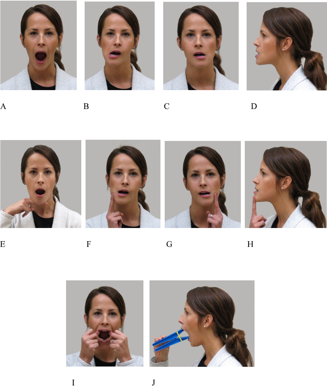 Jaw Exercises In The Treatment Of Masticatory Myofascial Pain