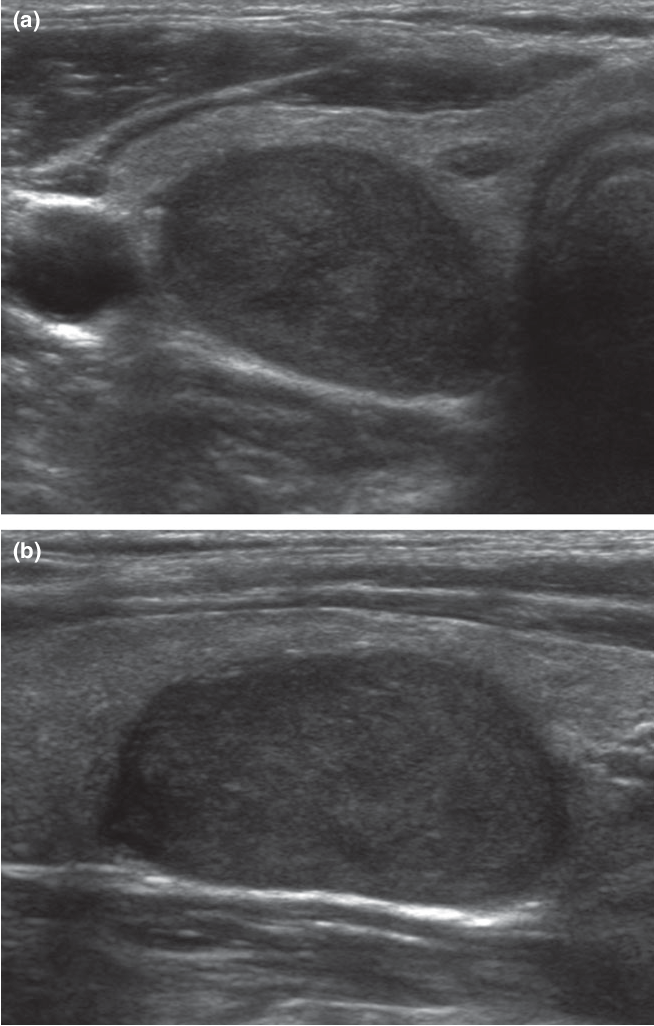 Follicular Variant Of Papillary Thyroid Carcinoma Comparison Of Ultrasound Guided Core Needle Biopsy And Ultrasound