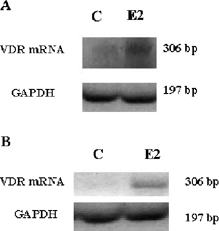 Figure 4 VDR mRNA expression. HT29 (A) and MCF-7 (B) cells were treated with 10-7 M E2, and RNA extracts were analyzed for VDR mRNA expression by RT-PCR, as compared to GAPDH expression.