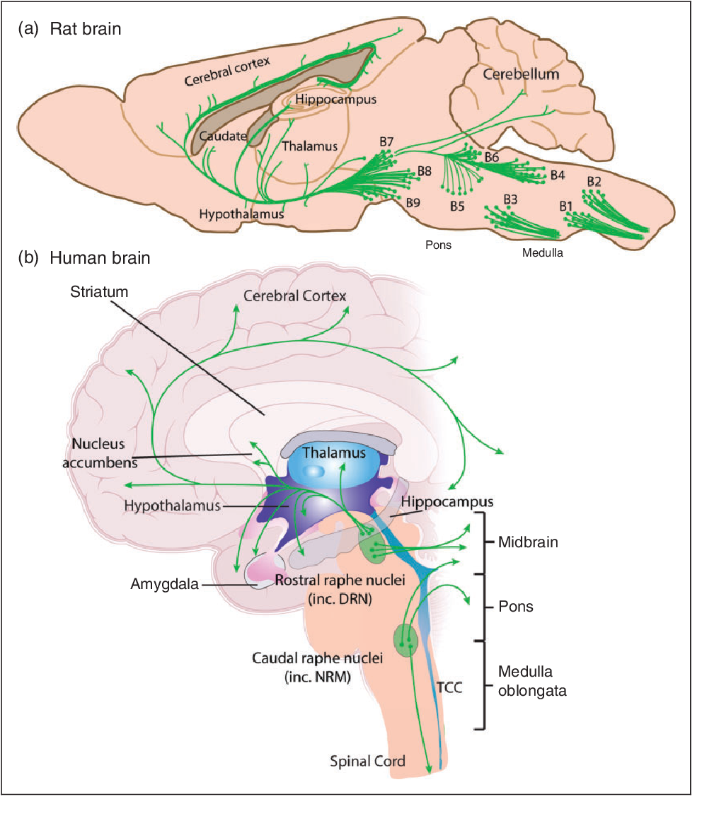 PDF Brain structure and function related to headache ...