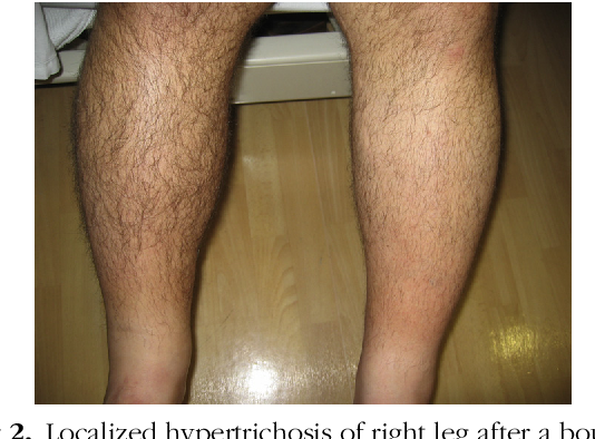 Figure 2 from Localized hypertrichosis after infectious rash