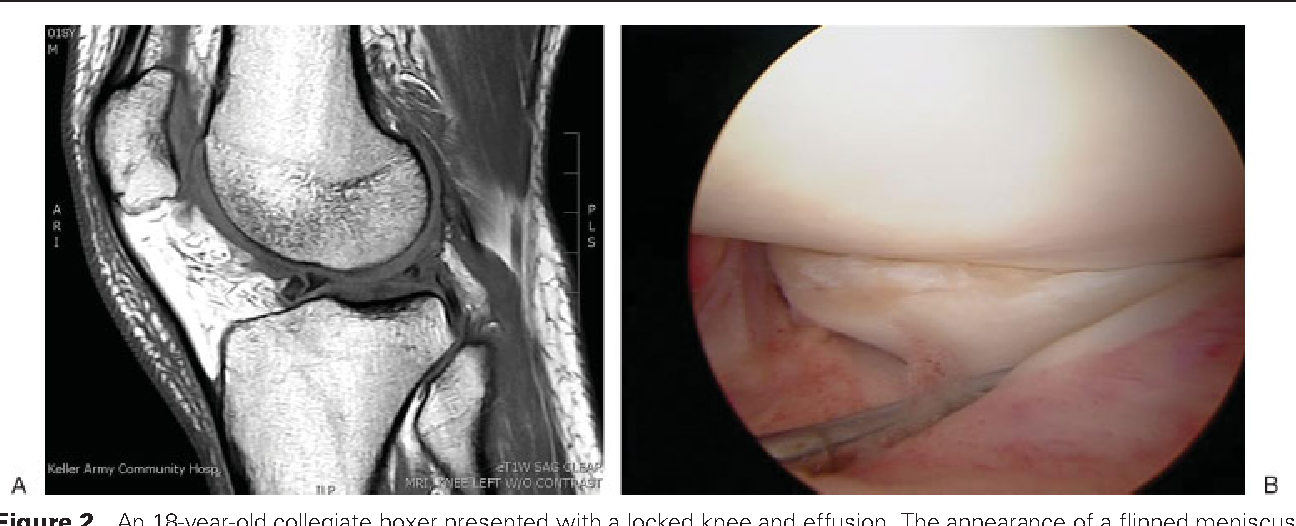 Figure 2 from Treatment of meniscal injuries in young