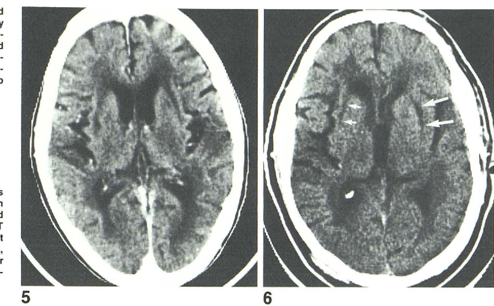 Figure 5 from CT of subinsular infarction and ischemia