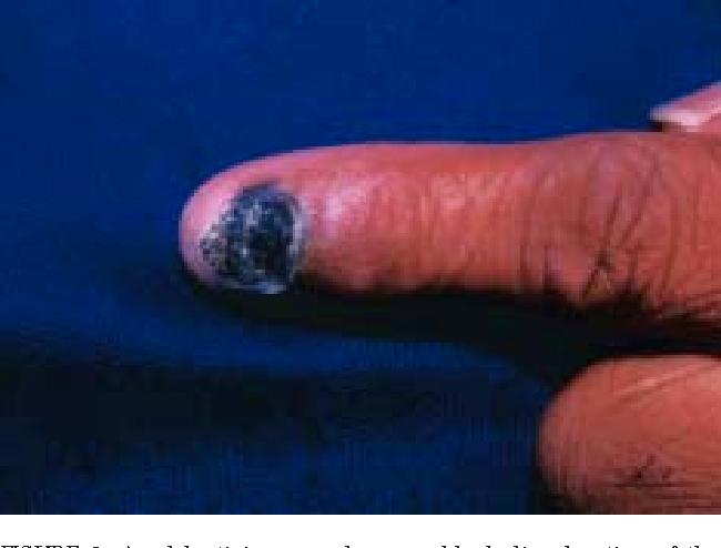 Figure 6 From Cutaneous Malignant Melanoma Semantic Scholar
