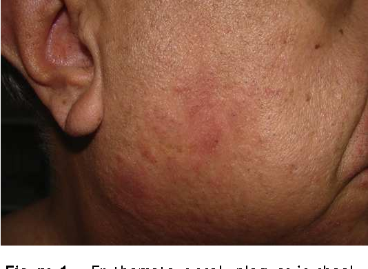 Figure 1 from Allergic contact dermatitis to cocamidopropyl