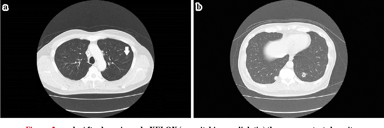 Pdf A Rupture Of A Lung Metastatic Lesion Of Colon Cancer Leading To Pneumothorax Caused By Bevacizumab Semantic Scholar