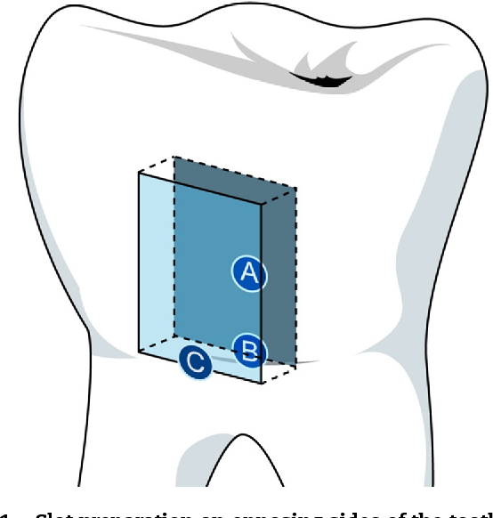 Figure 1 from Adhesion of resin-modified glass-ionomer