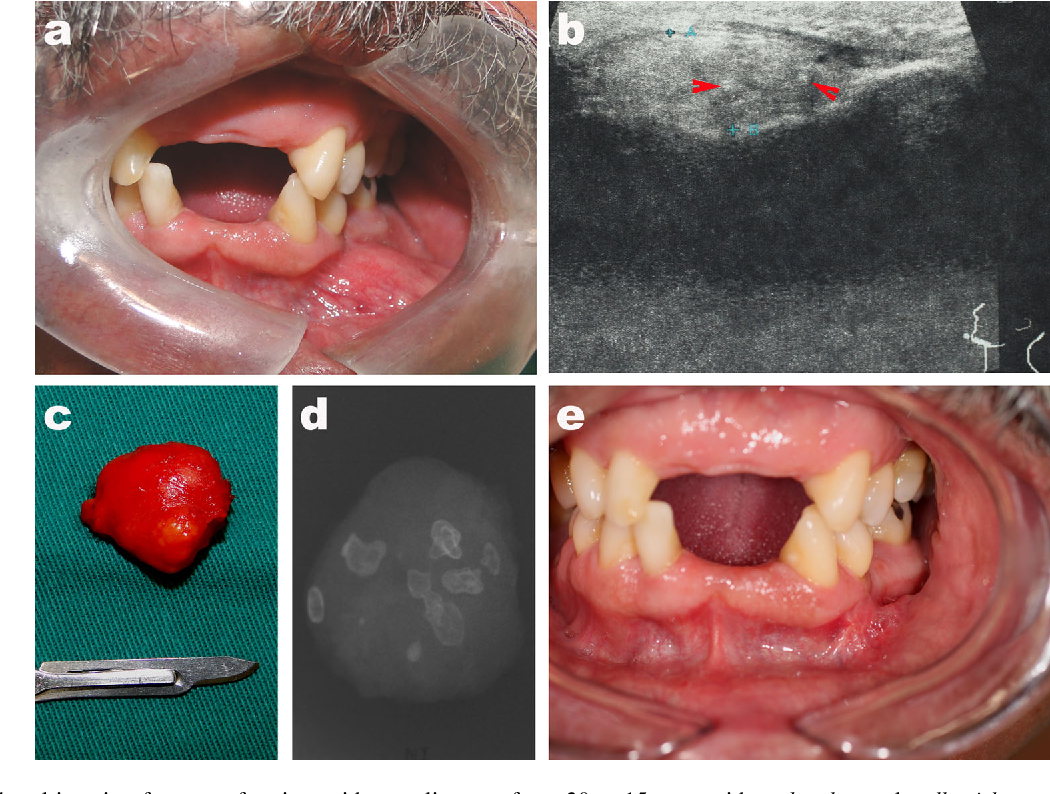 Figure 1 from Osteolipoma of the Oral Cavity: A Case Report