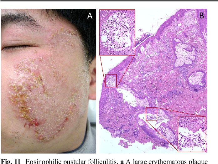 Figure 11 From Eosinophilic Skin Diseases A Comprehensive
