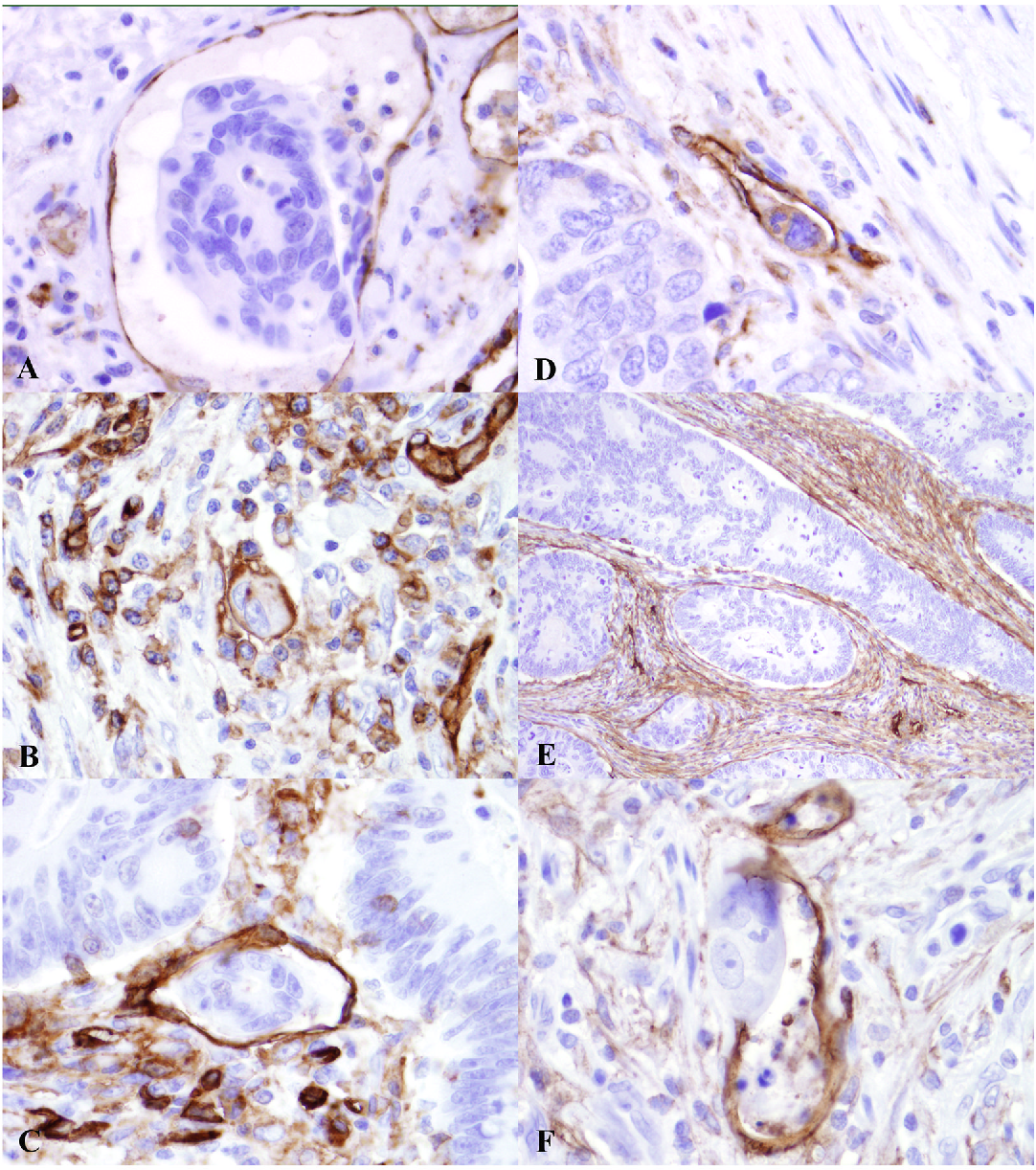 Figure 3 From Lymphovascular Invasion In Colorectal Cancer An Interobserver Variability Study Semantic Scholar