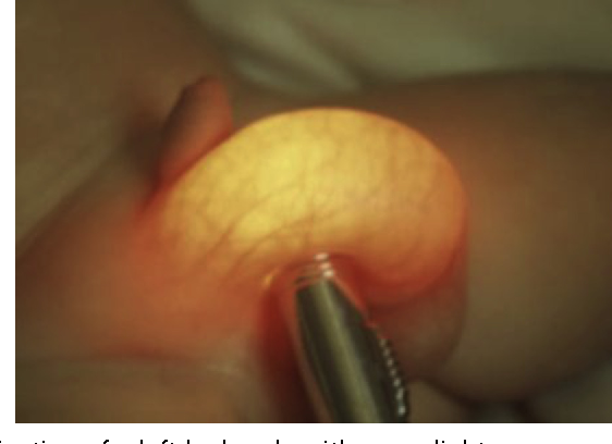 Figure 1 from Pediatric Urology for the General Surgeon