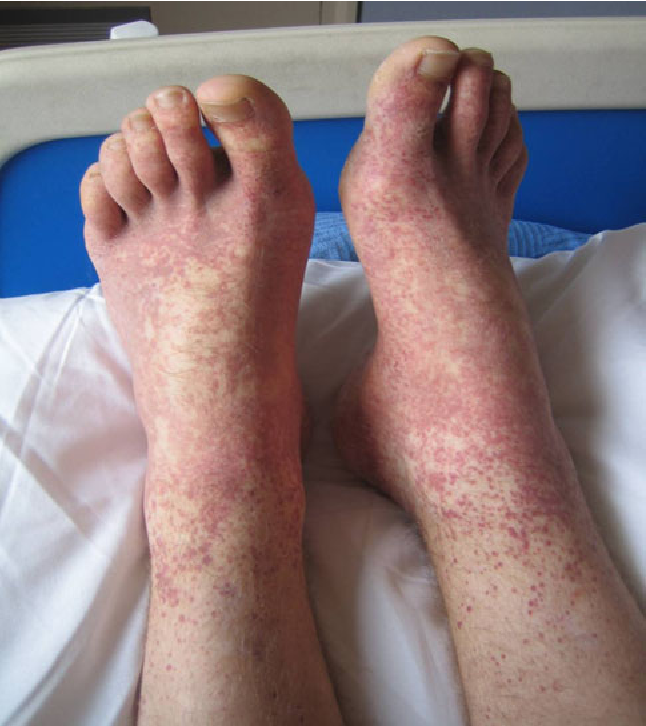 Figure 1 from Mesenteric vasculitis in adults with Henoch