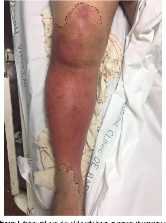 Figure 1 from Erysipelas or cellulitis with a prosthetic