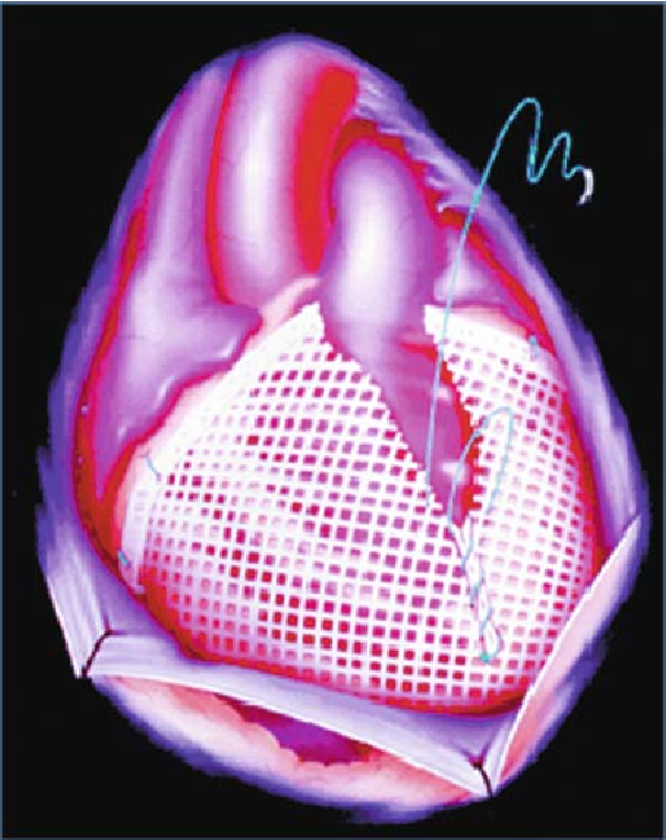 Computational Cardiovascular Mechanics: Modeling and Applications in Heart Failure