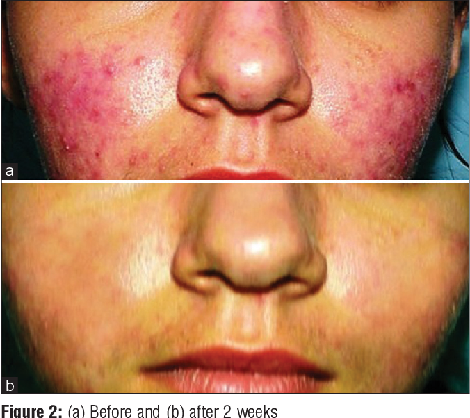 Treatment for steroid damaged skin steroids harmful