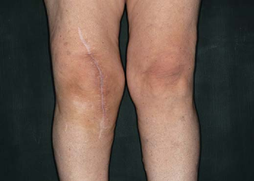 Intolerance reactions to knee arthroplasty in patients with