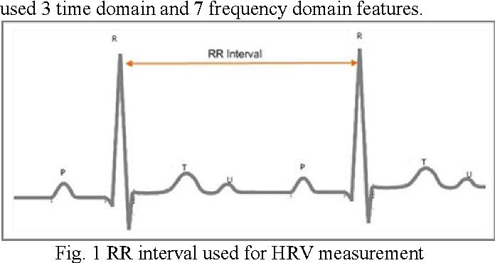 Figure 1 from Sudden cardiac death prediction using ECG