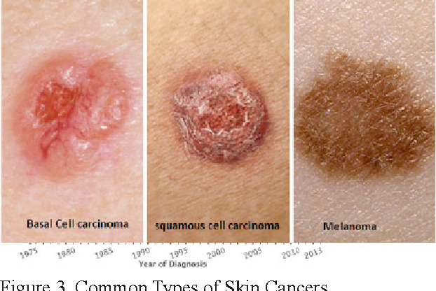 Figure 3 From Skin Cancer Concerns In People Of Color Risk Factors And Prevention Semantic Scholar