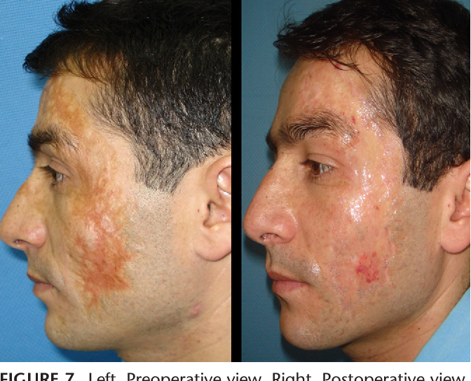 Figure 7 from Treatment of facial burn scars with CO2 laser