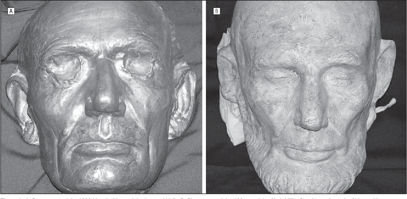 Figure 1 from Lincoln's craniofacial microsomia: three