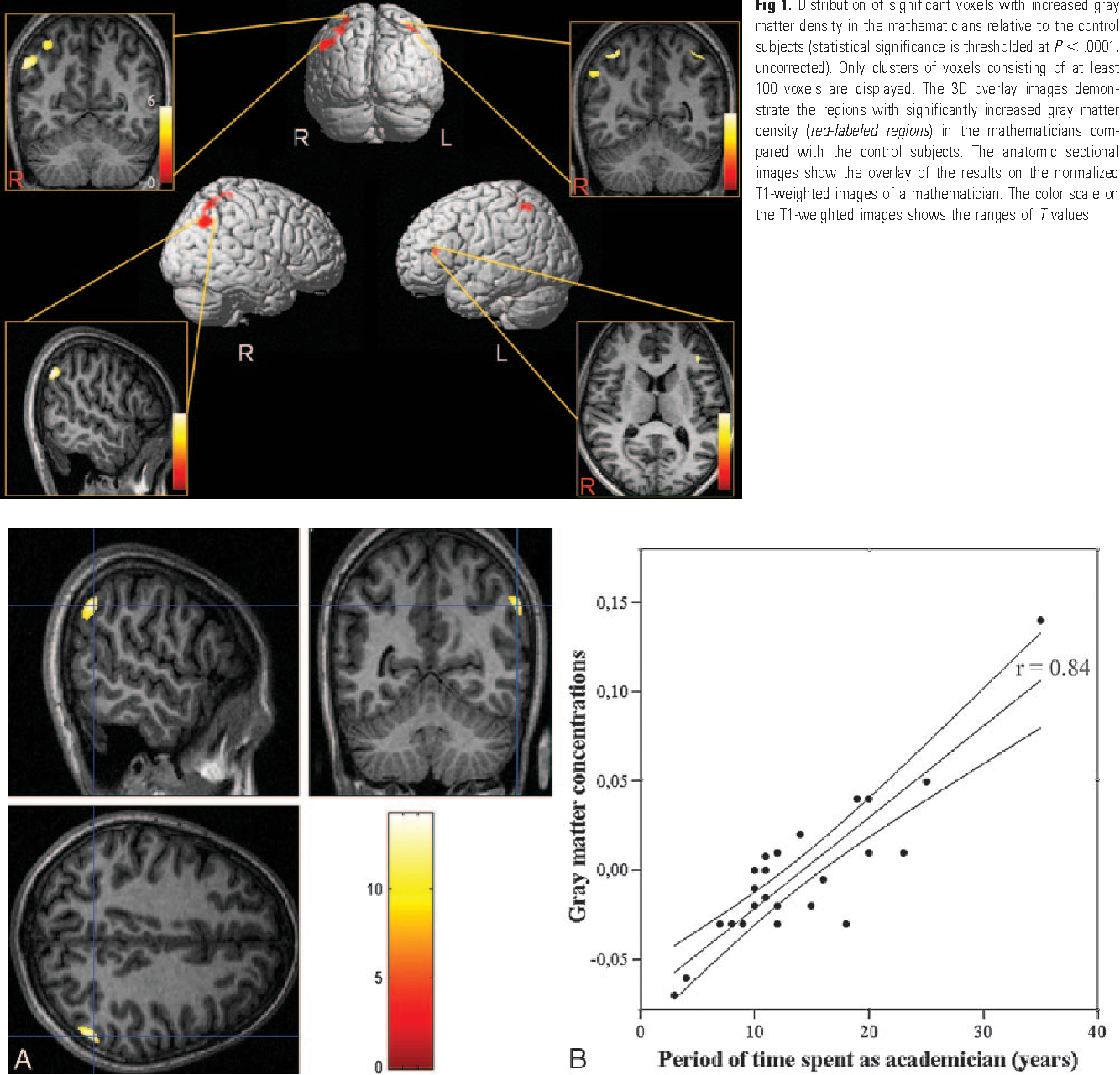 Gray Matter Density Increases During >> Figure 1 From Increased Gray Matter Density In The Parietal