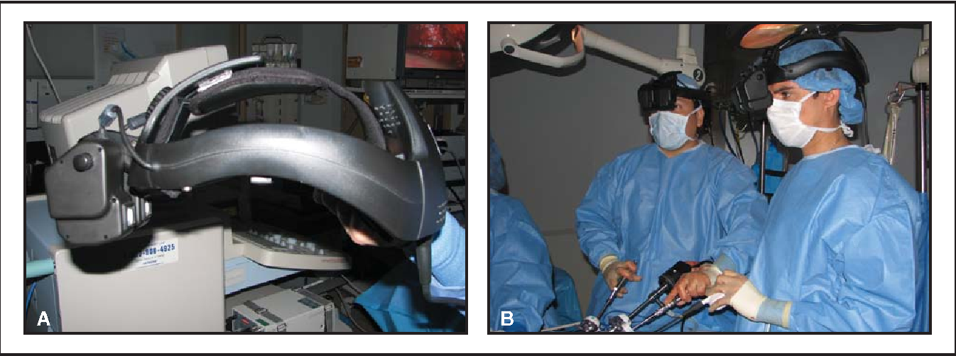Pdf Pure Laparoscopic And Robotic Assisted Laparoscopic Radical