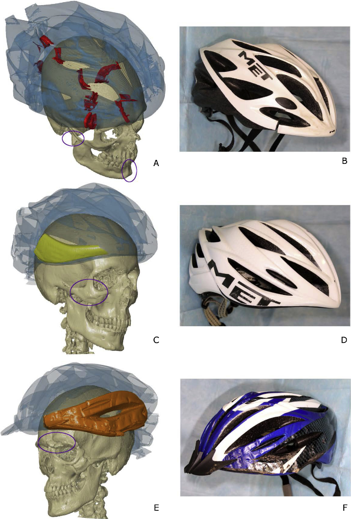 Figure 5 from 3D assessment of damaged bicycle helmets and
