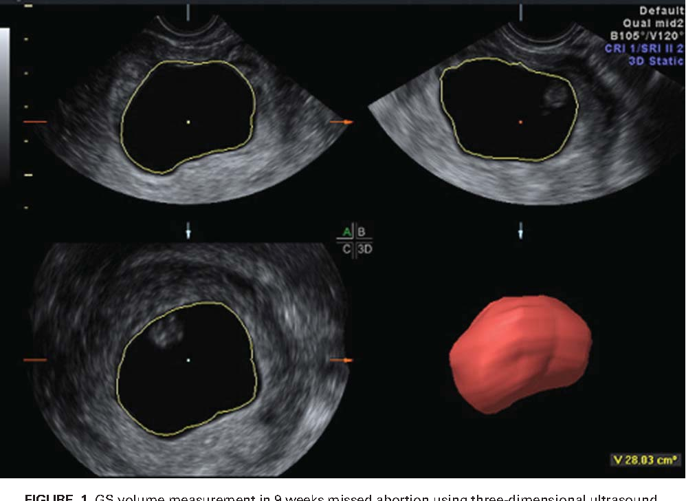 Figure 1 from Gestational sac volume in missed abortion and